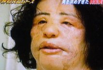 When her supply of silicone ran out Hang resorted to injecting cooking oil into her face. When her supply of silicone ran out Hang resorted to injecting cooking oil into her face.